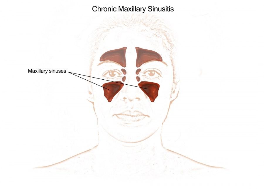 Vanderbilt Bill Wilkerson Center - Nasal/Sinus Treatments ... Maxillary Sinus Inflammation