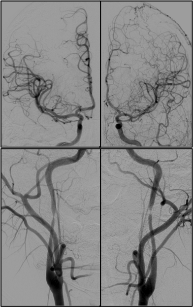 IC stenosis and stroke