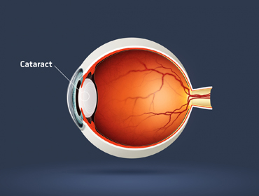 illustration of a cataract