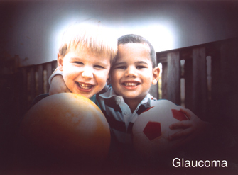 vision with glaucoma photo